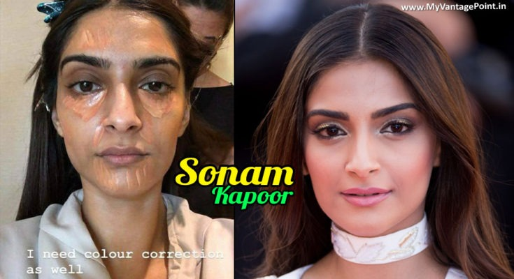 Sonam Kapoor Bursts All The Myths of Flawlessness in This Amazing Article
