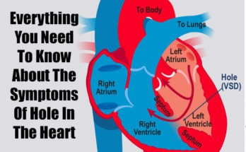 Symptoms Of Hole In The Heart