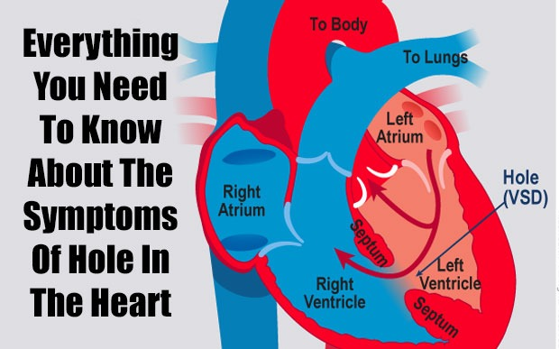 Everything You Need To Know About The Symptoms Of Hole In The Heart